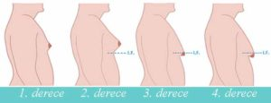 gynecomastia degrees